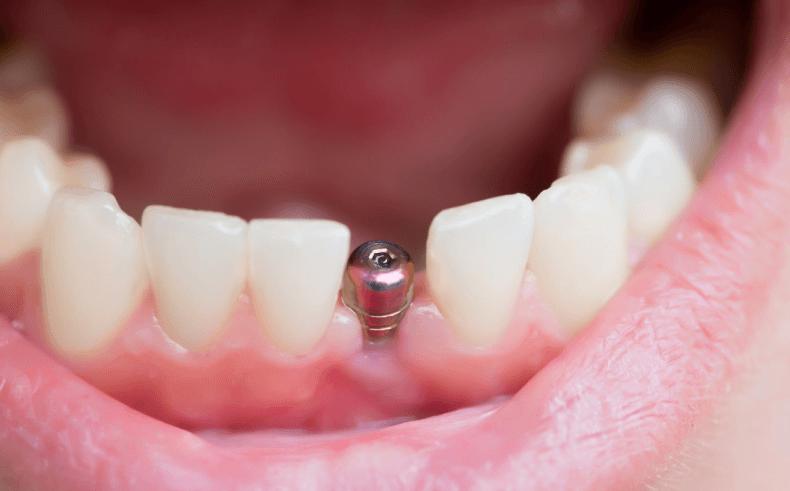 Ile kosztują implanty zębowe