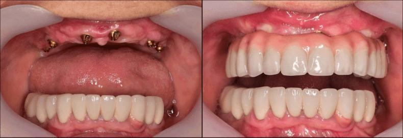Implanty zębowe - ile kosztują