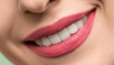implanty stomatologiczne dorodent