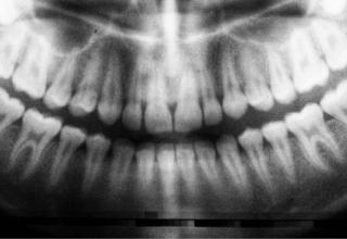 tomografia zęba xray.pl