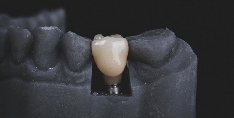 implanty er-dental.pl